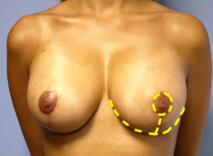 breast reduction surgery Birmingham with Guy Sterne cosmetic surgeon