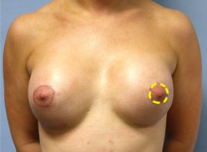Breast reducing surgery Birmingham